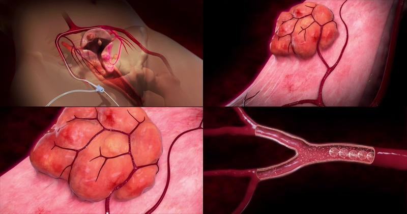 子宫瘤治疗医学动画