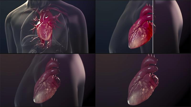 心力衰竭心跳医学动画视频