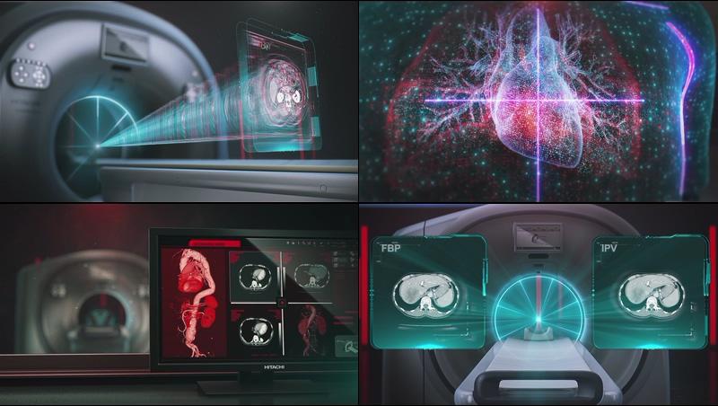 未来高科技新一代CT扫描视频