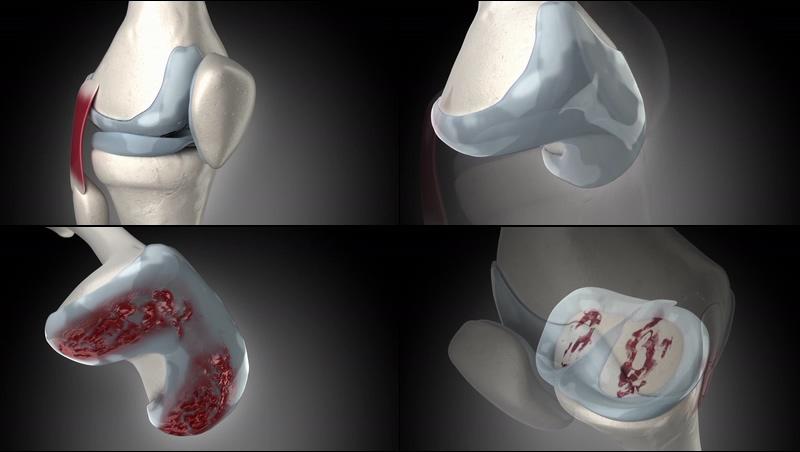 骨关节膝盖疼风湿病动画视频